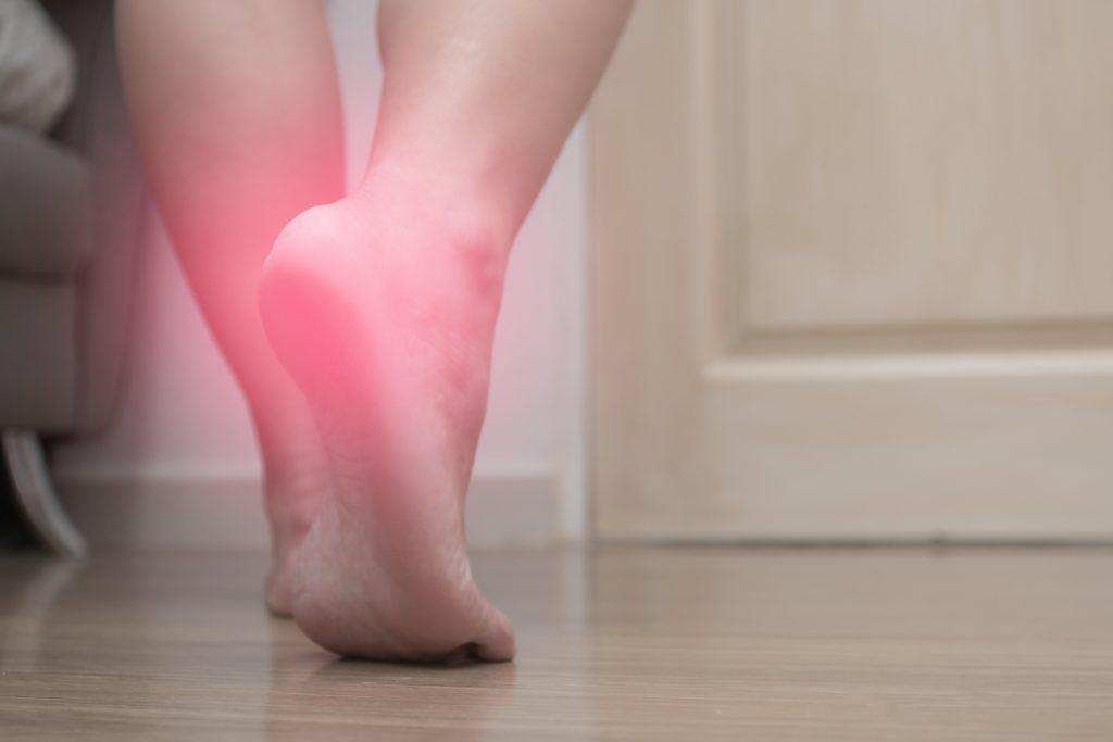fot. Jak leczyć ostrogę piętową domowymi sposobami aby nie zaszkodzić swojemu zdrowiu ?