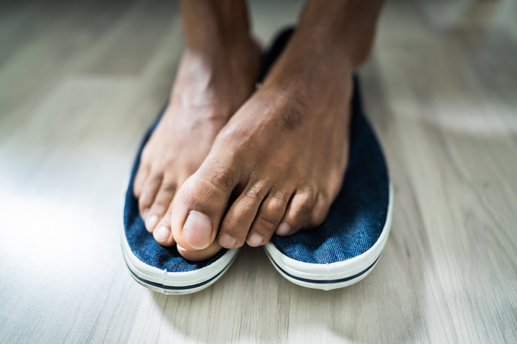 fot. Jakie są domowe sposoby na śmierdzące buty ?